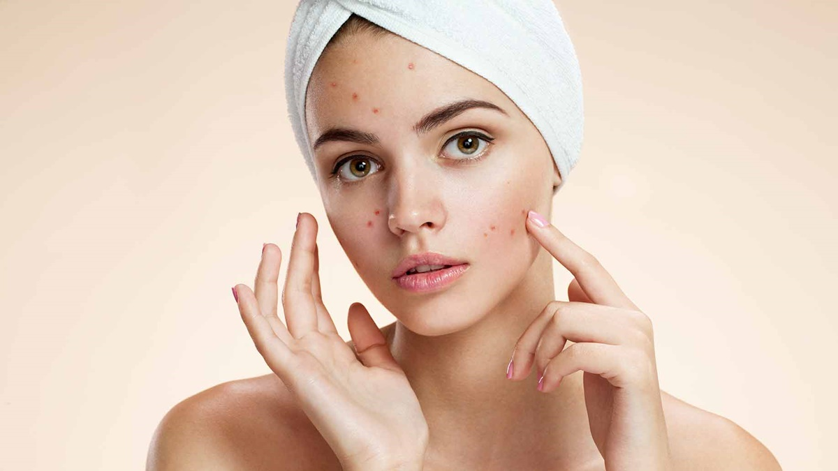 100 Ways to get rid of Acne