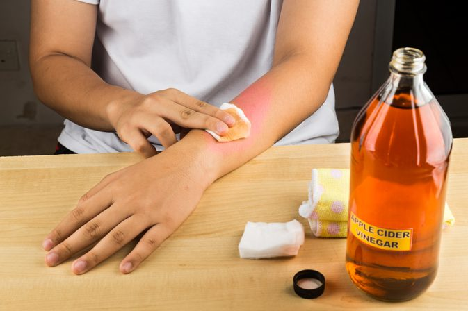 Heals Skin Allergies Apple Cider Vinegar