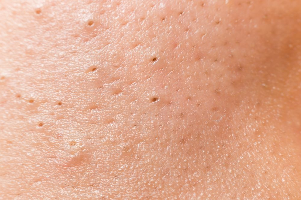 Blackheads On Legs Home Remedies