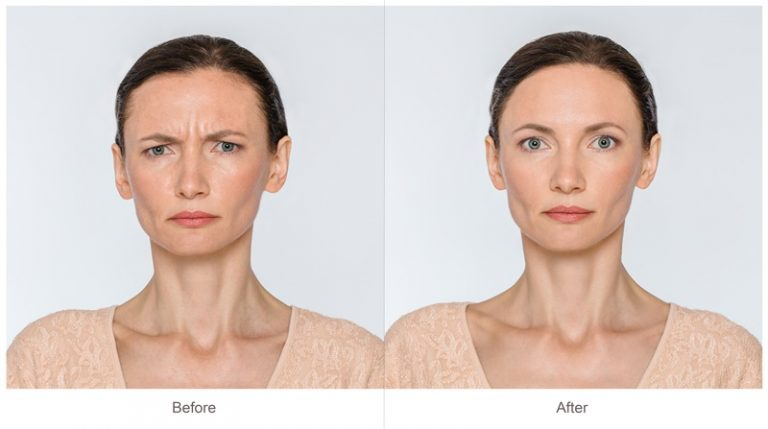 How to get Flawless Skin by Eliminating Age Spots