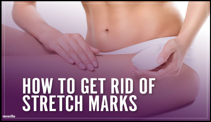 How to Rid Yourself of Stretch Marks Forever