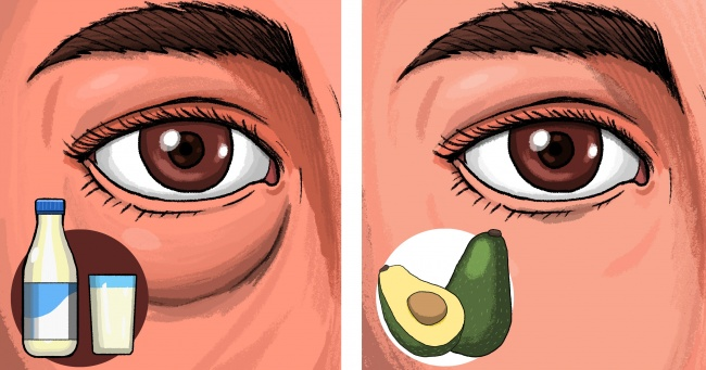 6 Foods That Can Give You Puffy Eyes and 4 That Can Fix Them